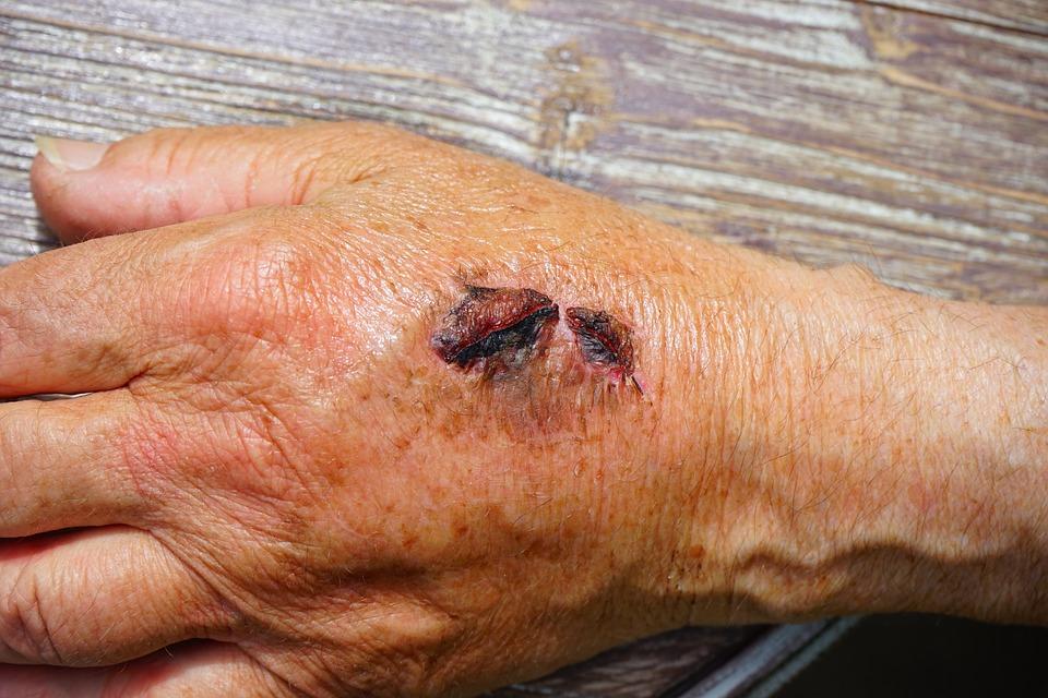 Heridas por escaras en las manos